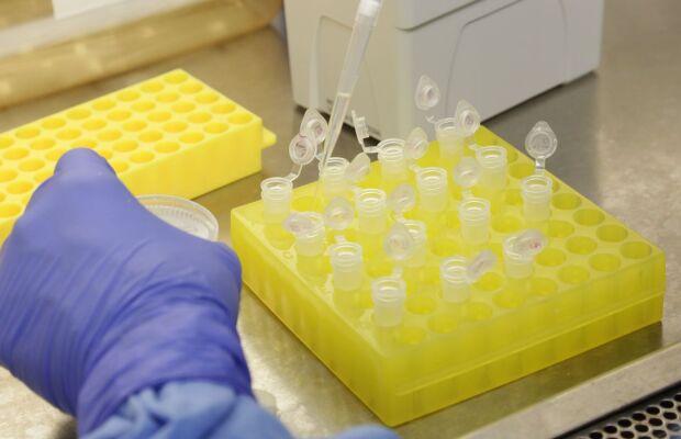 Mulher que veio da Bélgica é um dos novos casos confirmados de coronavírus em MS