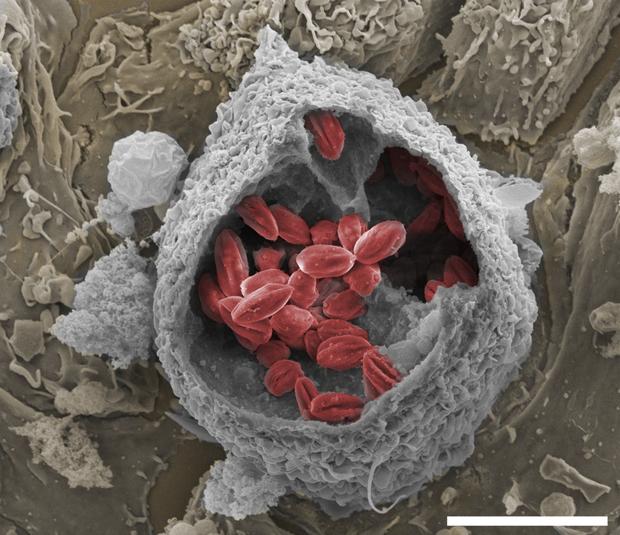 Fármaco nanotecnológico visa tratamento mais eficiente e menos invasivo contra a doença