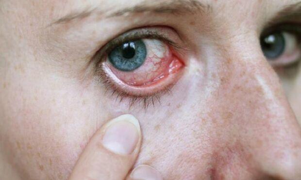 No caso da Síndrome do Olho Seco, o oftalmologista explica que também é comum o paciente apresentar lacrimejamento atípico