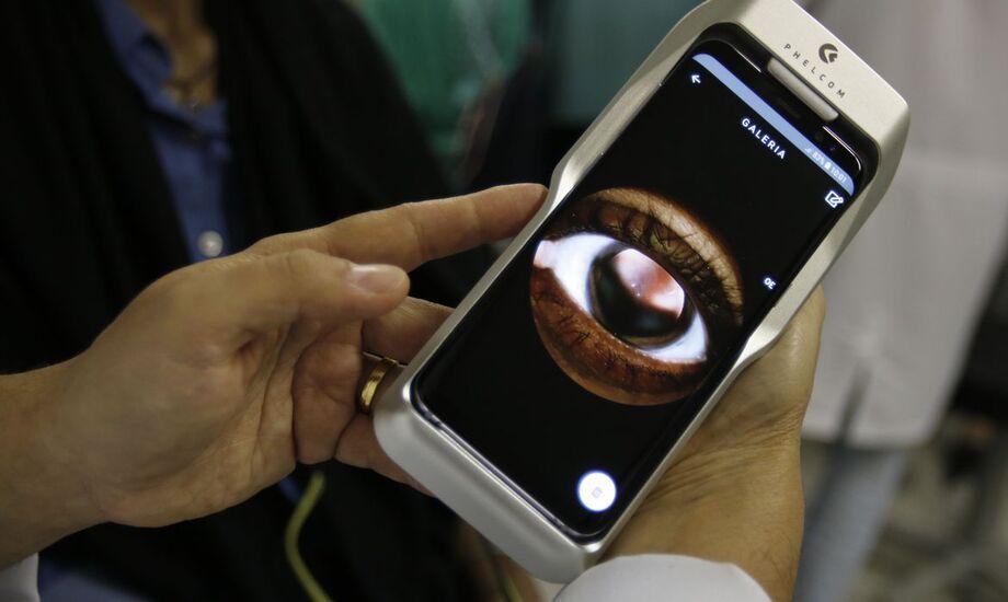 Eyer, um retinógrafo portátil  instrumento que permite a realização de exames oculares, de frente e fundo de olho