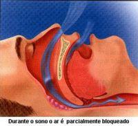 Serviço - Para conferir o tratamento do Ronco, a clínica Odontoart oferece o mais sofisticado métido