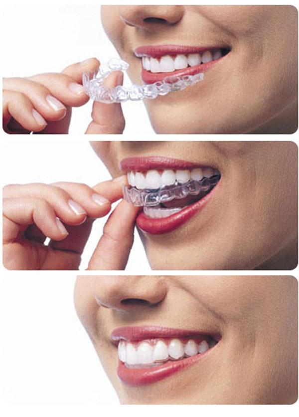 O Invisalign utiliza jogos de placas transparentes sequenciais, feitos sob medida, lembrando muito as moldeiras de clareamento e são trocadas quinzenalmente para correção da posição dos dentes.