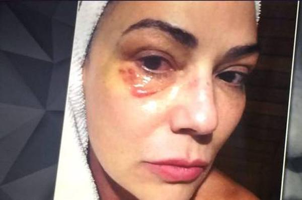 Luiza Brunet mostra olho machucado após agressão