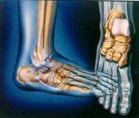 ligamentos acometidos en absoluto entorse de tornozelo